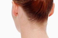 颈椎病的刮痧疗法 颈椎病怎么刮痧治疗[图]