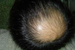 导致男人脱发的原因是什么?男人脱发的原因有哪些?[多图]
