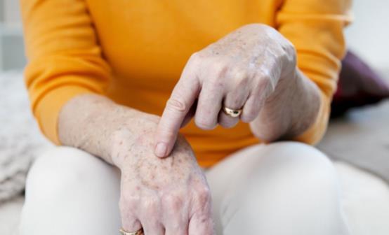 手上长老年斑是什么原因?手上长老年斑应该怎么办