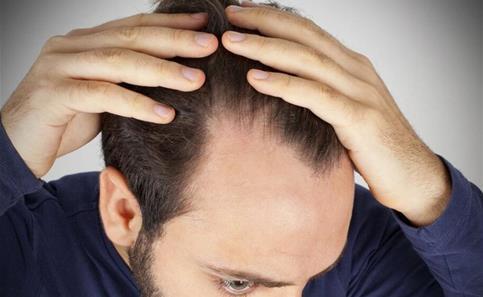 中年男人脱发怎么办?吃什么食物能预防脱发[图]