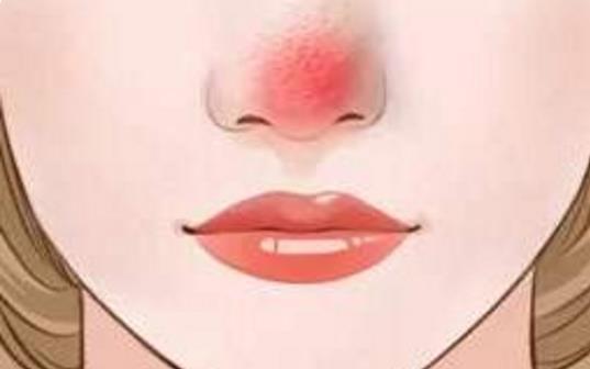 红鼻头有哪些表现?红鼻头要注意什么?