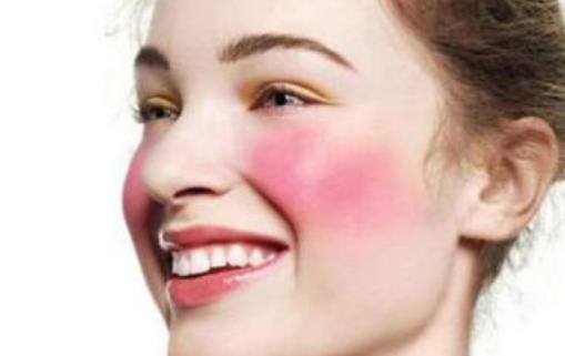 激素脸有哪些表现?激素脸的人需要注意什么?