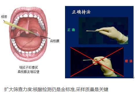 核酸检测新冠病毒的常用手段:口腔拭子、鼻腔拭子检测图解