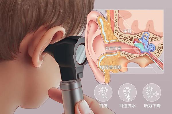 成都民生耳鼻喉医院收费 治中耳炎收费平价