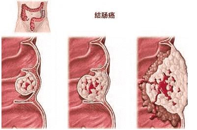 最新!武汉江汉博仕医院:肠道筛查做什么检查
